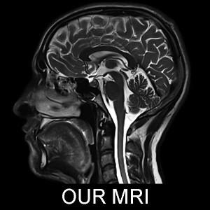 Our MRI Image