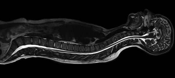 Wellness MRI 3_0T